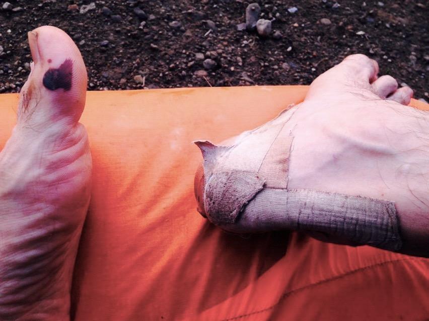 Ноги после похода