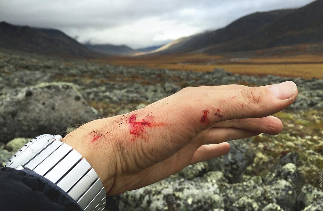 Травмы в походе